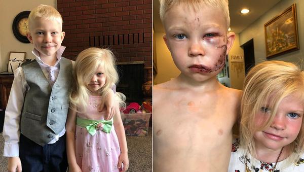 ABD'de, dört yaşındaki kız kardeşini köpek saldırısından kurtarmak için araya giren ve yüzüne 90'dan fazla dikiş atılan altı yaşındaki Bridger Walker günün kahramanı oldu. - Sputnik Türkiye