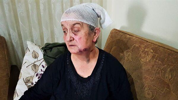 Yaşlı kadın, yaralı yaşlı kadın, hırsızdan ölü taklidi yaparak kurtuldu - Sputnik Türkiye