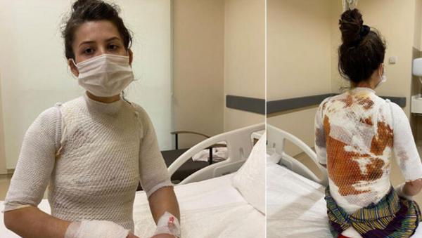 Eşini ve 1.5 yaşındaki kızını kaynar suyla yaktı: - Sputnik Türkiye