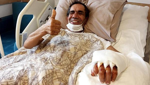 Kopan eliyle hastaneye gitti, 10 saatte yerine dikildi - Sputnik Türkiye