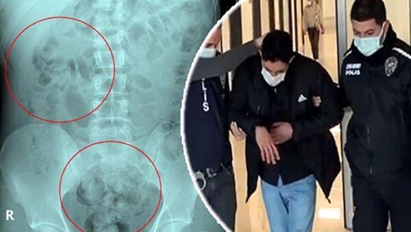 İran uyruklu Zadeh Ahmed Narziveh'in midesinden 890 gram metamfetamin çıktı - Sputnik Türkiye