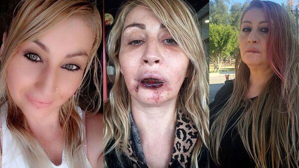 Estetik ameliyat mağduru kadın - Sputnik Türkiye