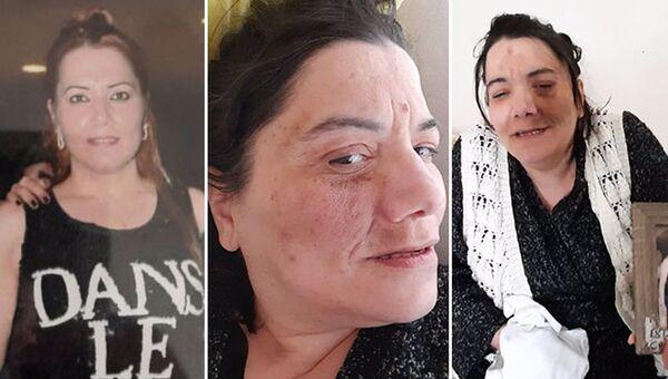 Damak tedavisinde sinir kesilince yüz felci oldu: 'Nefes almakta bile zorlanıyor, ilaç içip tüm gün uyuyor' - Sputnik Türkiye