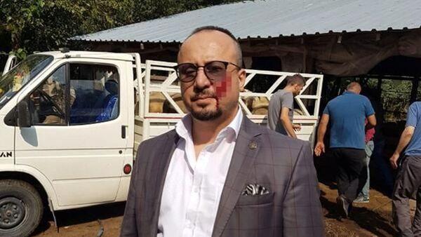 Avukatı yanağından ısıran sanığa 2.5 yıl hapis cezası - Sputnik Türkiye