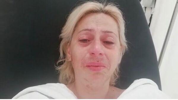 Sokak hayvanlarını belediği gerekçesi ile darbedilen kadın - Sputnik Türkiye