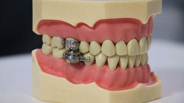 DentalSlim Diet Control: Kilitleme cıvataları olan manyetik bileşenlik alet, ağzın sadece 2 mm açılmasına izin vererek katı yiyeceklerin içeri alınmasını engelliyor. - Sputnik Türkiye