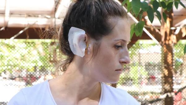 Bardak ve meyve bıçaklı saldırıya uğrayan kadın konuştu - Sputnik Türkiye