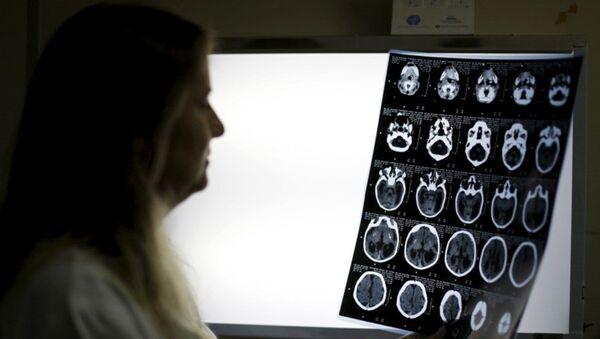 röntgen, beyin - Sputnik Türkiye