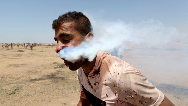 İsrail, Gazze'deki protestoculara saldırdı. Yüzünden gaz bombası kapsülüyle vurulan Heysam Ebu Sebla isimli 23 yaşındaki bir genç yaşam destek ünitesine bağlandı. - Sputnik Türkiye