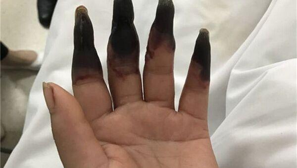 Elindeki ufak kesik nedeniyle 8 parmağını birden kaybediyordu - Sputnik Türkiye