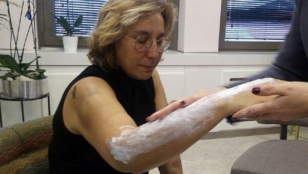 Doktora beyzbol sopasıyla saldırı: 'Sadece ellerime ve kollarıma darbe vurdular' - Sputnik Türkiye