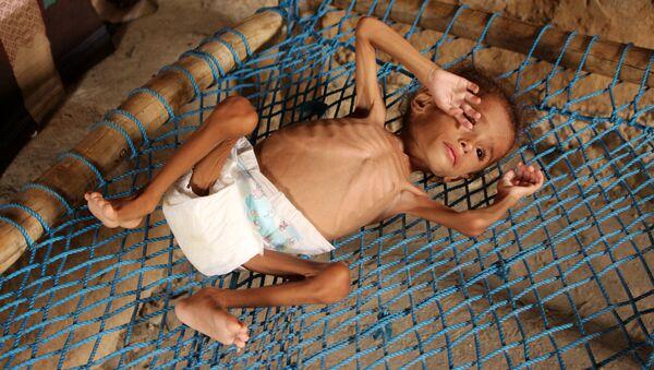 Yemen'de açlık ve yetersiz beslenme - Sputnik Türkiye