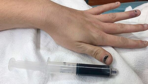 25 yaşındaki kadının kanı, içtiği ilaç yüzünden mavi renge döndü - Sputnik Türkiye
