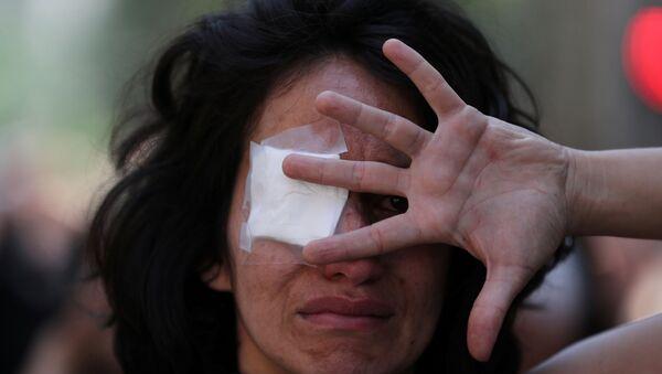 Şili başkenti Santiago'daki eylemlerde polisin insanları gözlerinden vurmasını protesto için göz bandı takan bir gösterici - Sputnik Türkiye