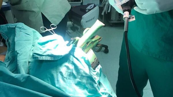 Antalya'da yüzüne demir çubuk saplanan genç, itfaiye ekibiyle ameliyat edildi - Sputnik Türkiye