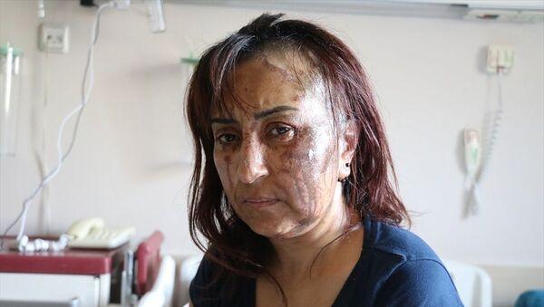 Boşanma davası açtığı eşinin kezzaplı saldırısına uğradı  - Sputnik Türkiye