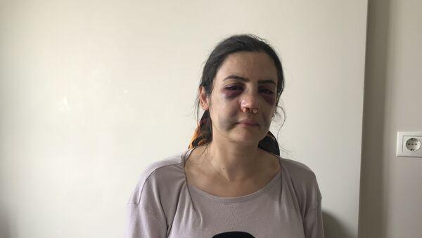 40 yaşındaki 2 çocuk annesi Derya E., boşanmak istediği eşi Erol E. tarafından takip edildi. - Sputnik Türkiye